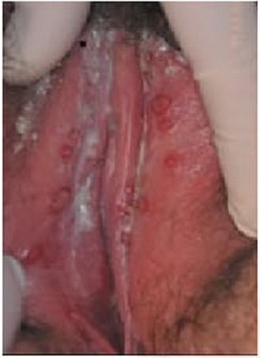 Зуд влагалища - Гомеопатический лечебник